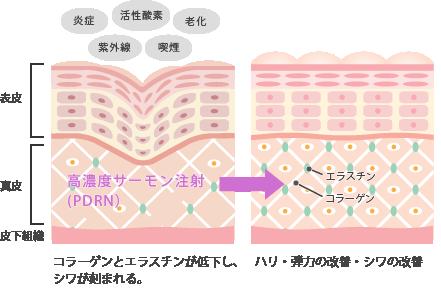 サーモン注射とコラーゲンの活性化